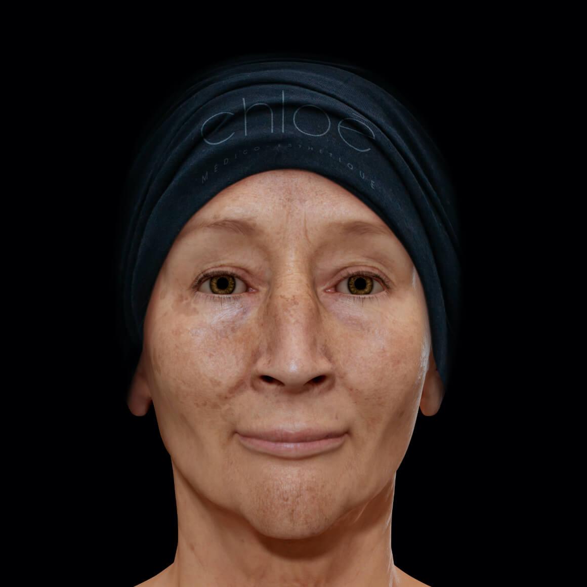 Femme patiente à la Clinique Chloé vue de face arborant du mélasma sur le visage