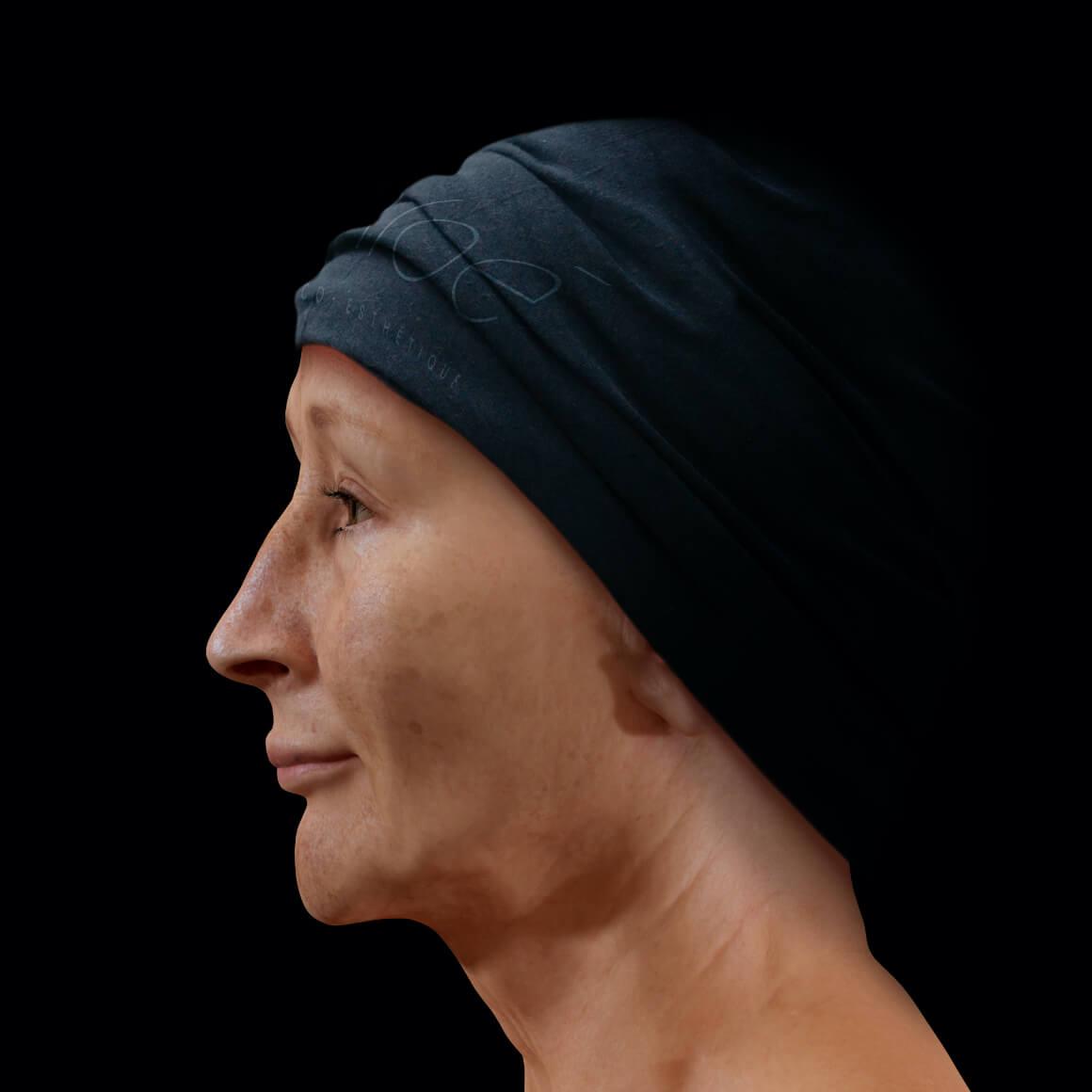 Femme patiente à la Clinique Chloé vue de côté arborant du mélasma sur le visage
