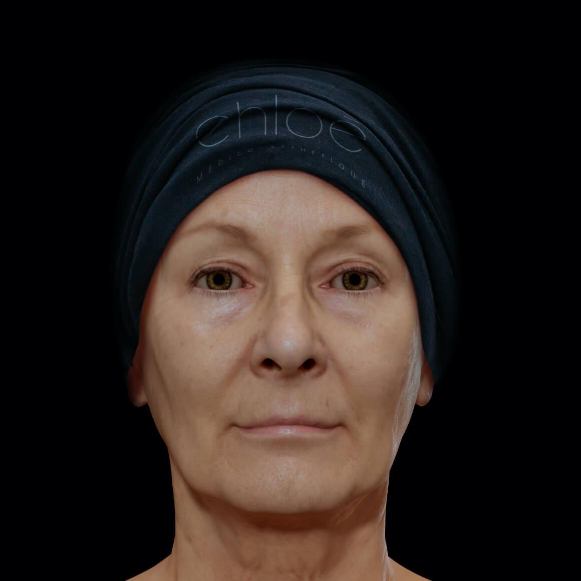 Patiente de la Clinique Chloé positionnée de face après des traitements au laser fractionné pour le lifting des paupières