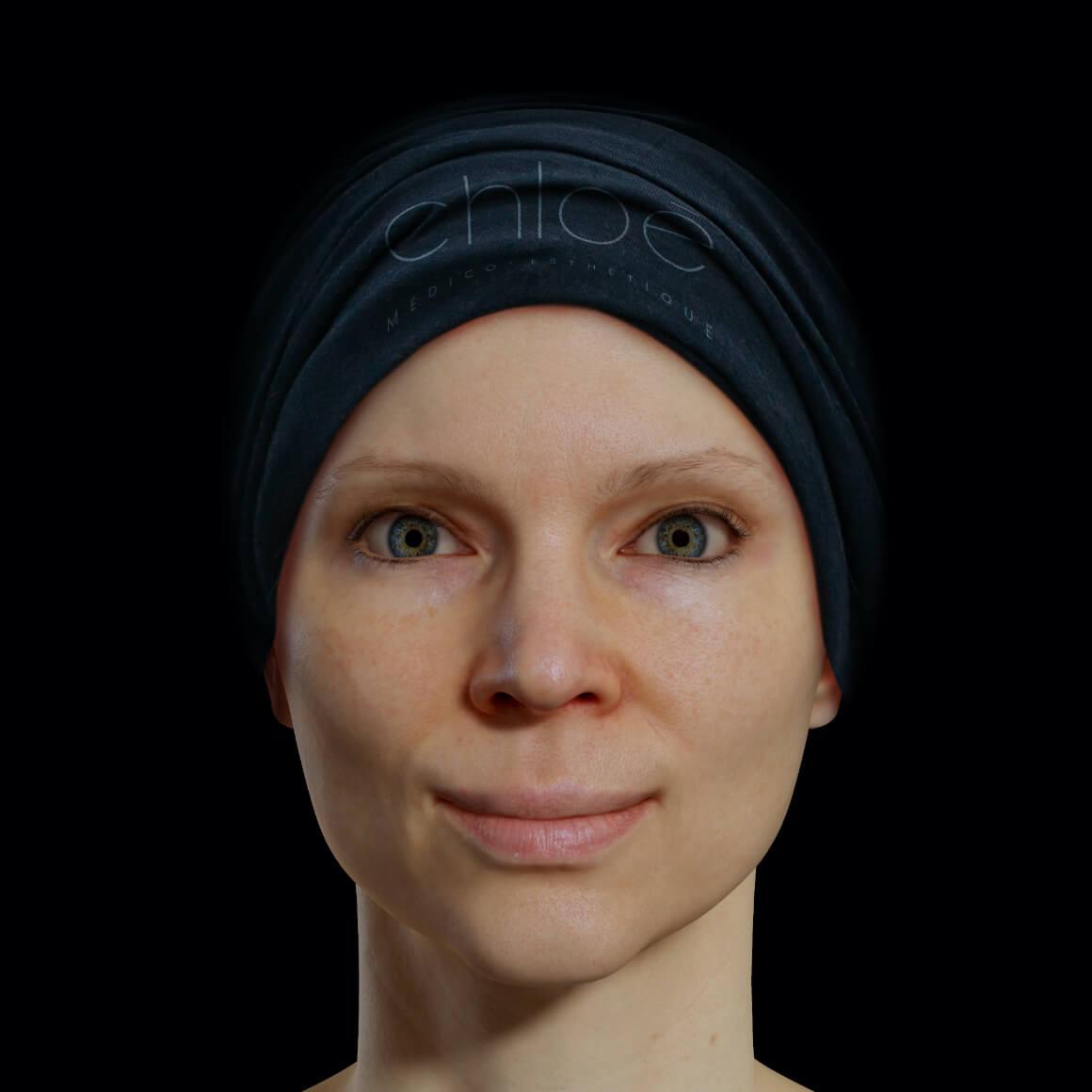 Patiente de la Clinique Chloé positionnée de face après des injections de neuromodulateurs pour le lifting des paupières