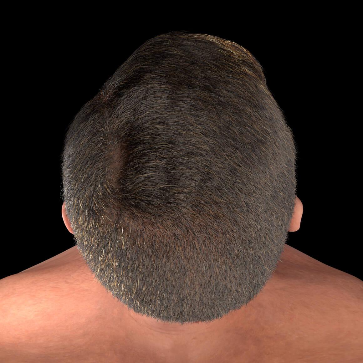 Cuir chevelu d'un patient de la Clinique Chloé après des traitements de plasma riche en plaquettes contre la perte de cheveux