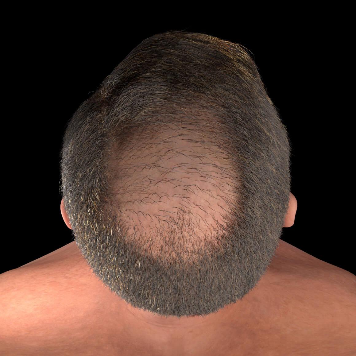 Cuir chevelu d'un patient de la Clinique Chloé démontrant des cheveux clairsemés