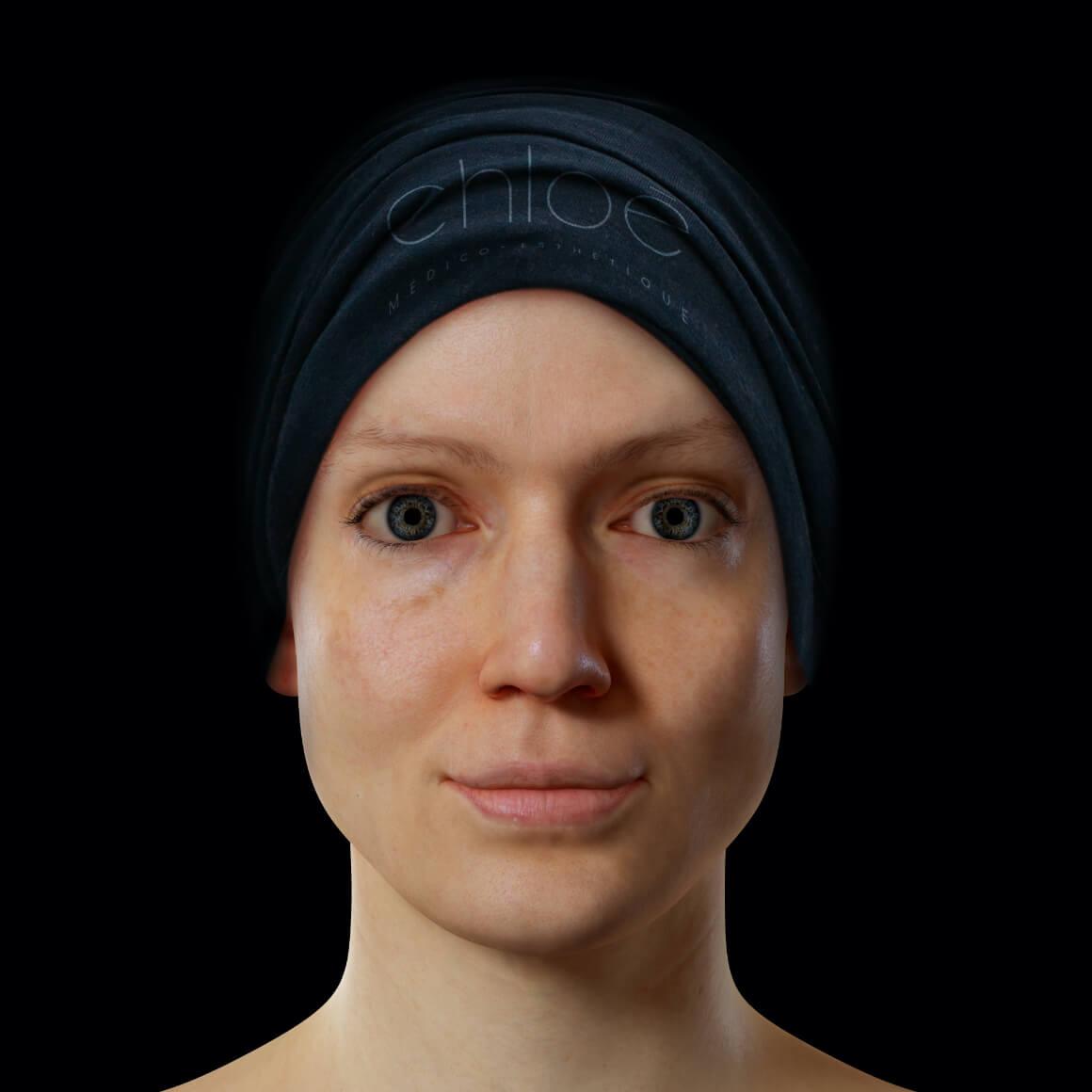 Patiente de la Clinique Chloé positionnée de face après des traitements au laser fractionné contre les pores dilatés