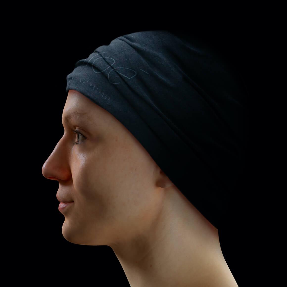 Patiente de la Clinique Chloé positionnée de côté après des traitements au laser fractionné contre les pores dilatés