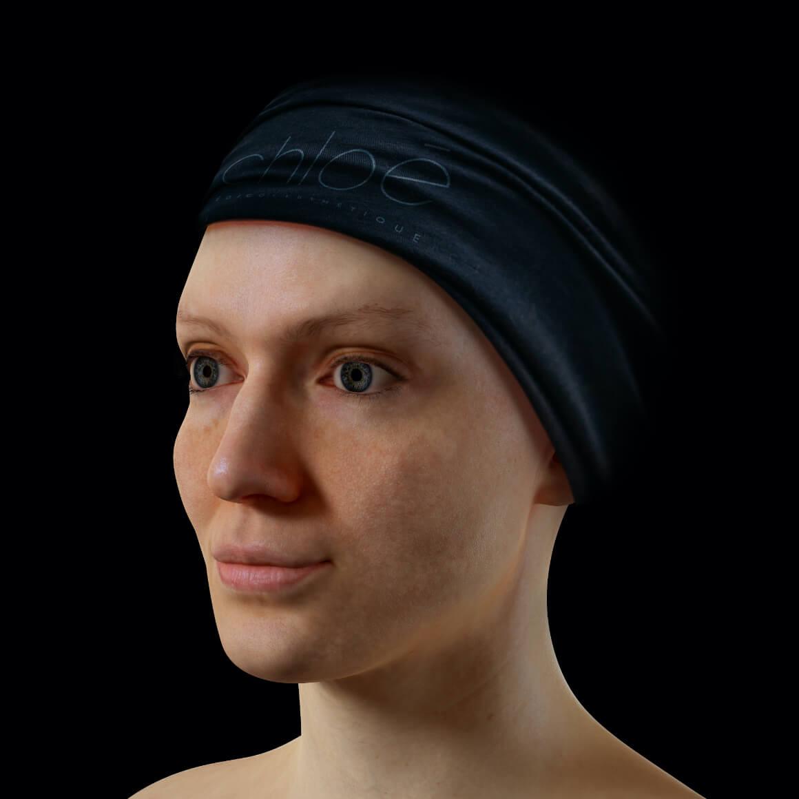 Patiente de la Clinique Chloé positionnée en angle ayant des pores dilatés sur la peau du visage
