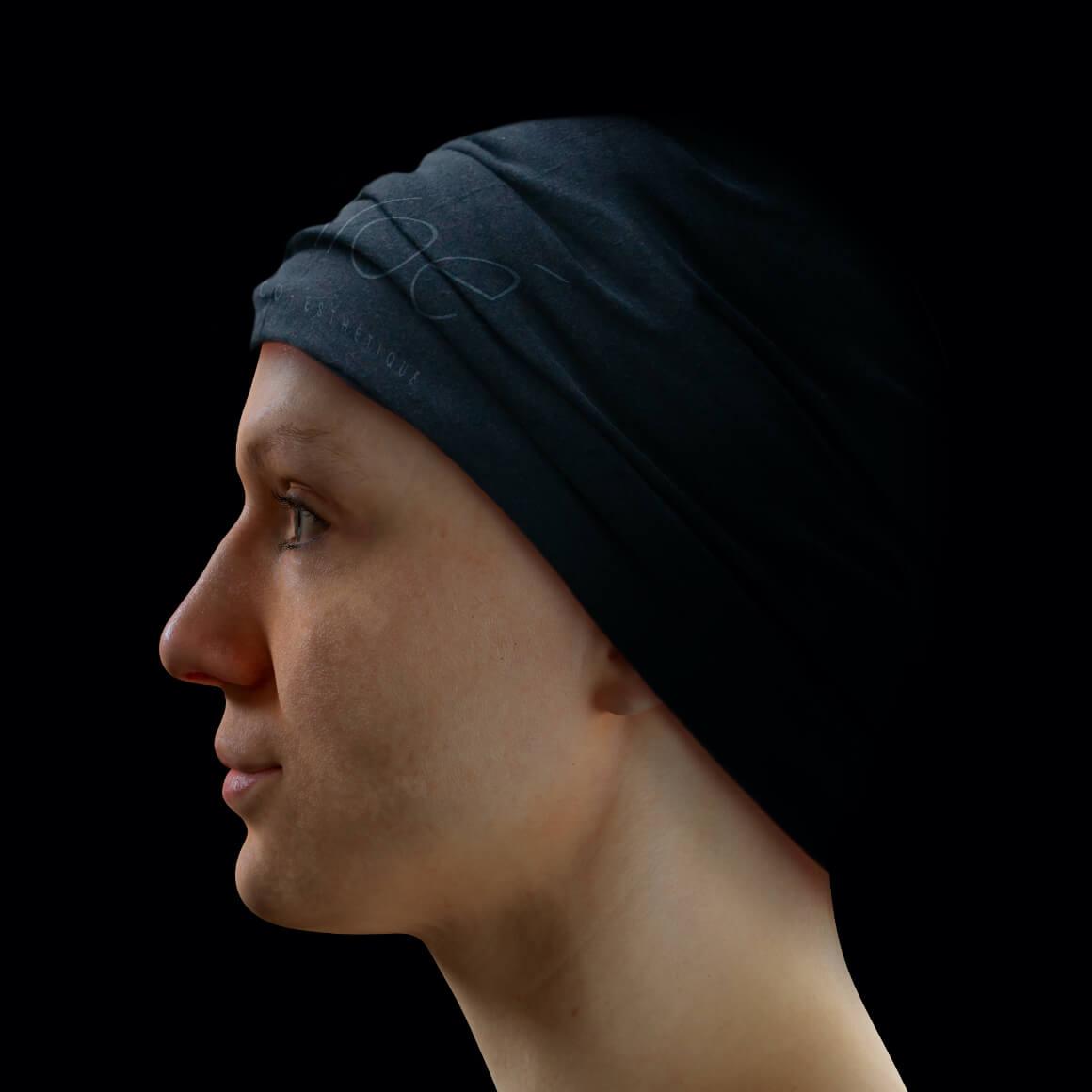 Patiente de la Clinique Chloé positionnée de côté ayant des pores dilatés sur la peau du visage