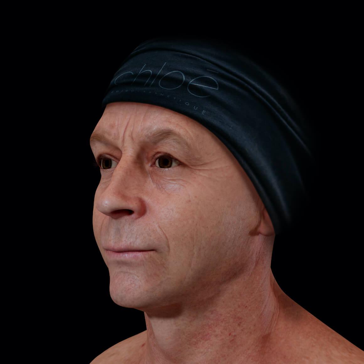 Patient de la Clinique Chloé positionné en angle après des traitements de microneedling contre les pores dilatés