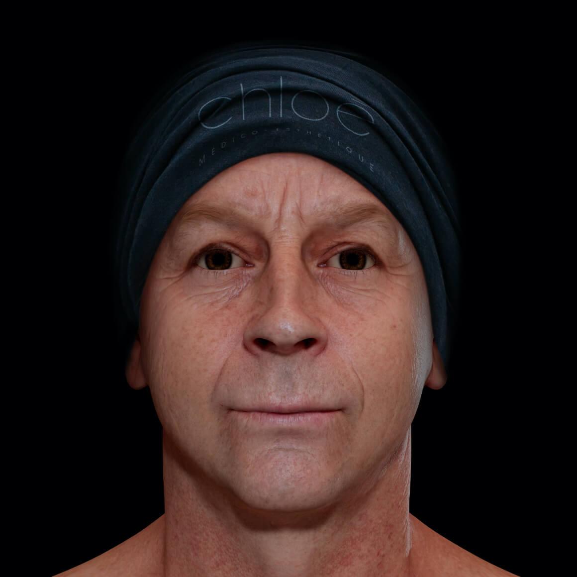 Patient de la Clinique Chloé positionné de face après des traitements de microneedling contre les pores dilatés