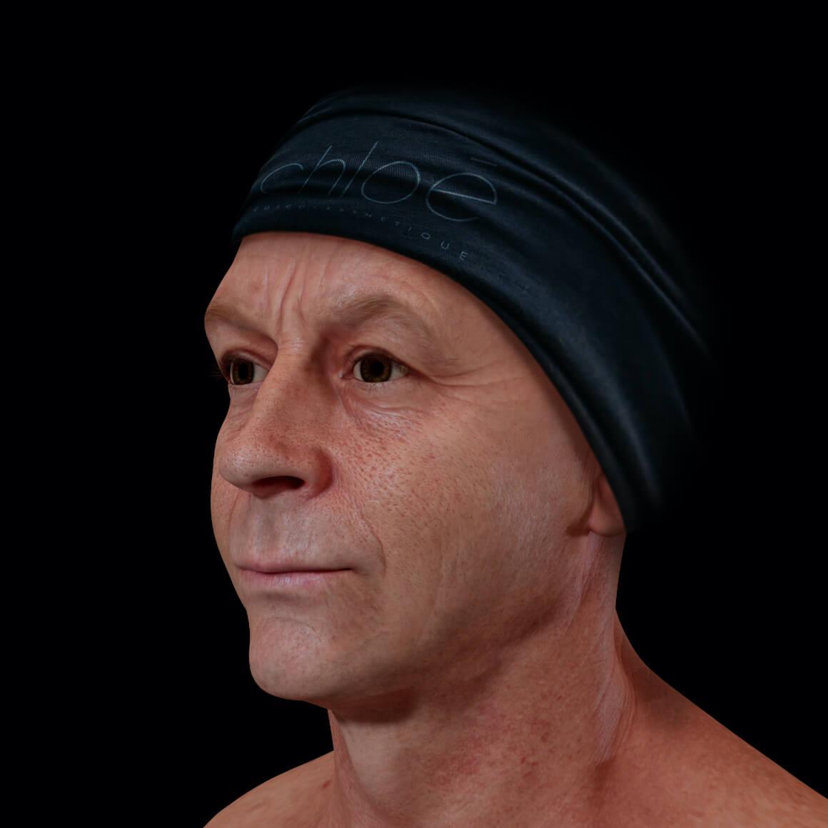 Patient à la Clinique Chloé positionné en angle ayant une peau du visage montrant des pores dilatés