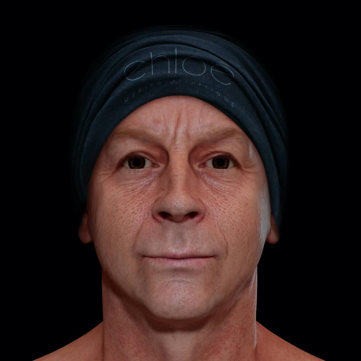 Patient à la Clinique Chloé positionné de face ayant une peau du visage montrant des pores dilatés