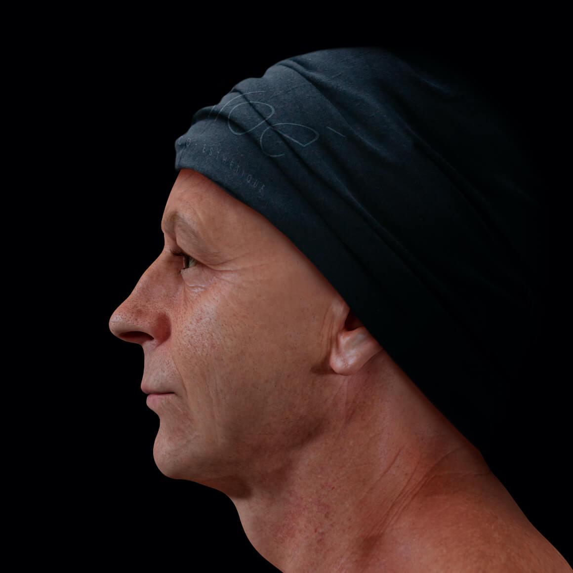 Patient à la Clinique Chloé positionné de côté ayant une peau du visage montrant des pores dilatés
