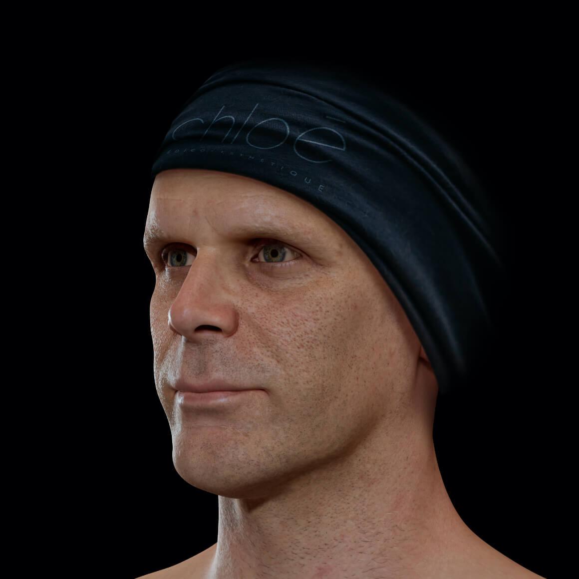 Patient de la Clinique Chloé positionné en angle ayant une peau du visage montrant des pores dilatés