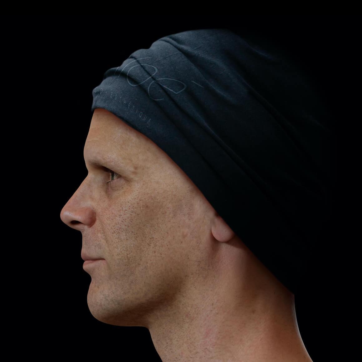 Patient de la Clinique Chloé positionné de côté ayant une peau du visage montrant des pores dilatés