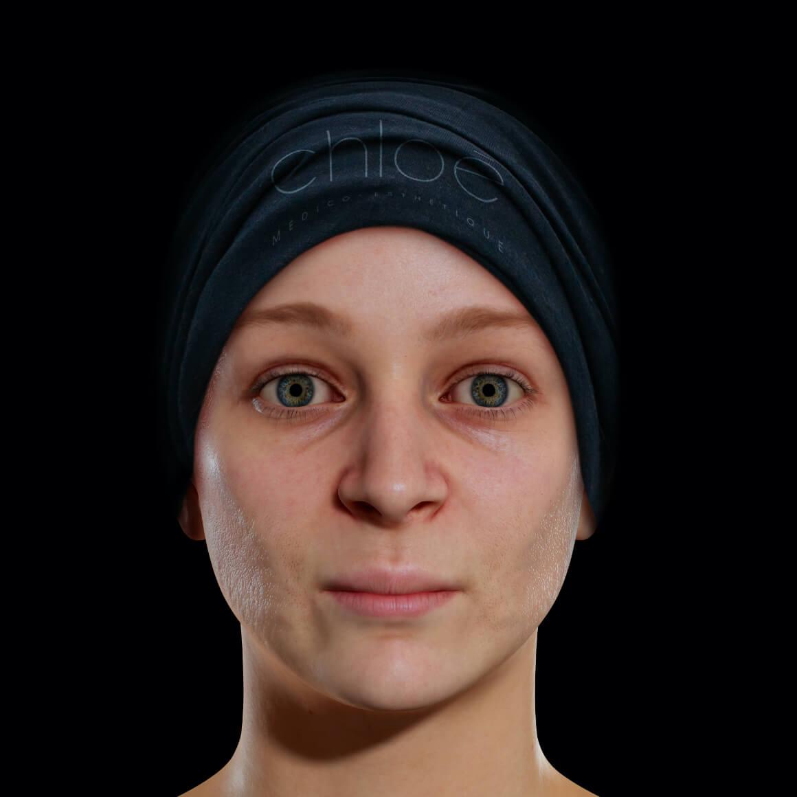 Patiente de la Clinique Chloé positionnée de face ayant des pores dilatés sur la peau du visage