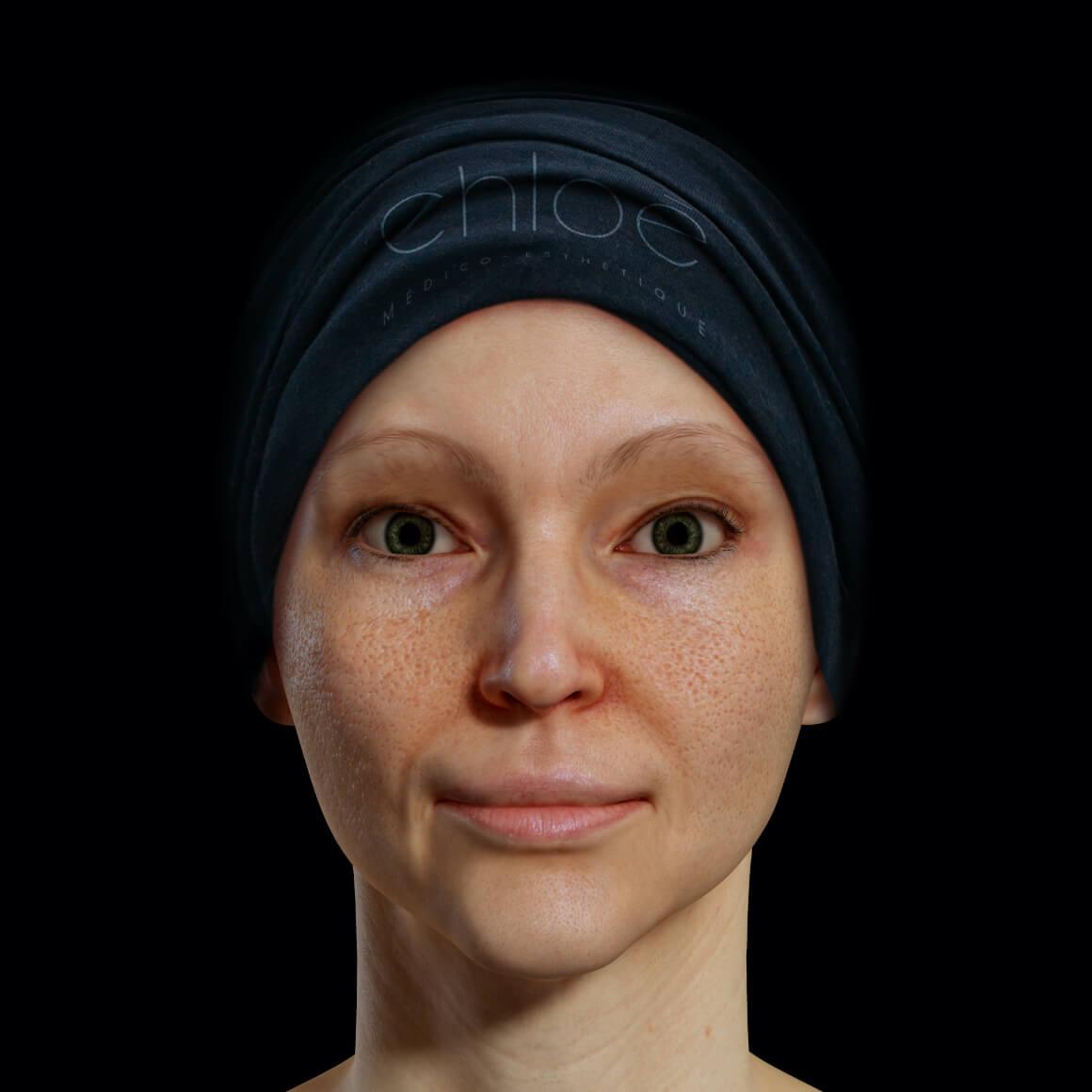 Patiente de la Clinique Chloé positionnée de face ayant une peau du visage montrant des pores dilatés