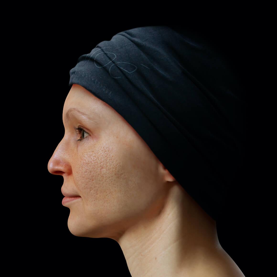 Patiente de la Clinique Chloé positionnée de côté ayant une peau du visage montrant des pores dilatés