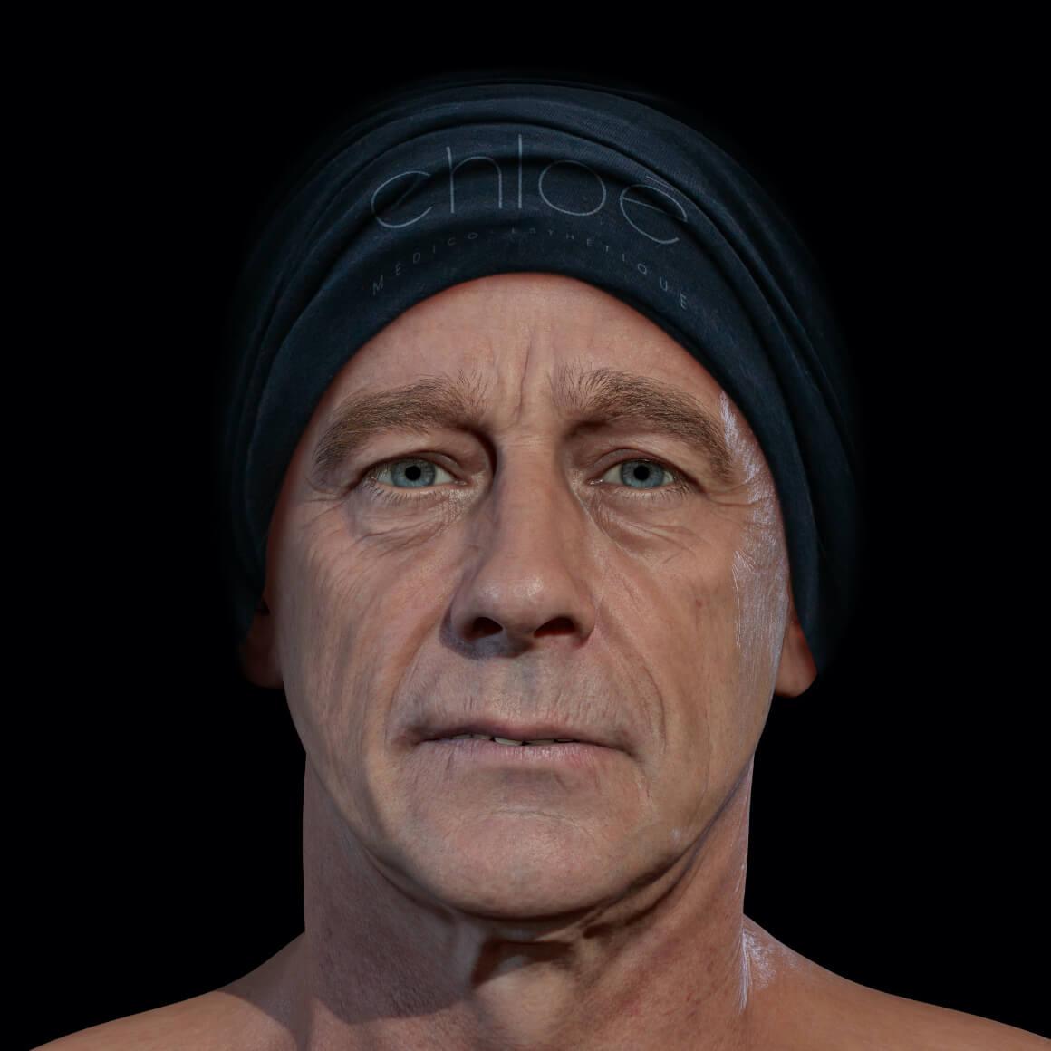 Homme patient à la Clinique Chloé positionné de face démontrant des rides creuses au niveau du visage