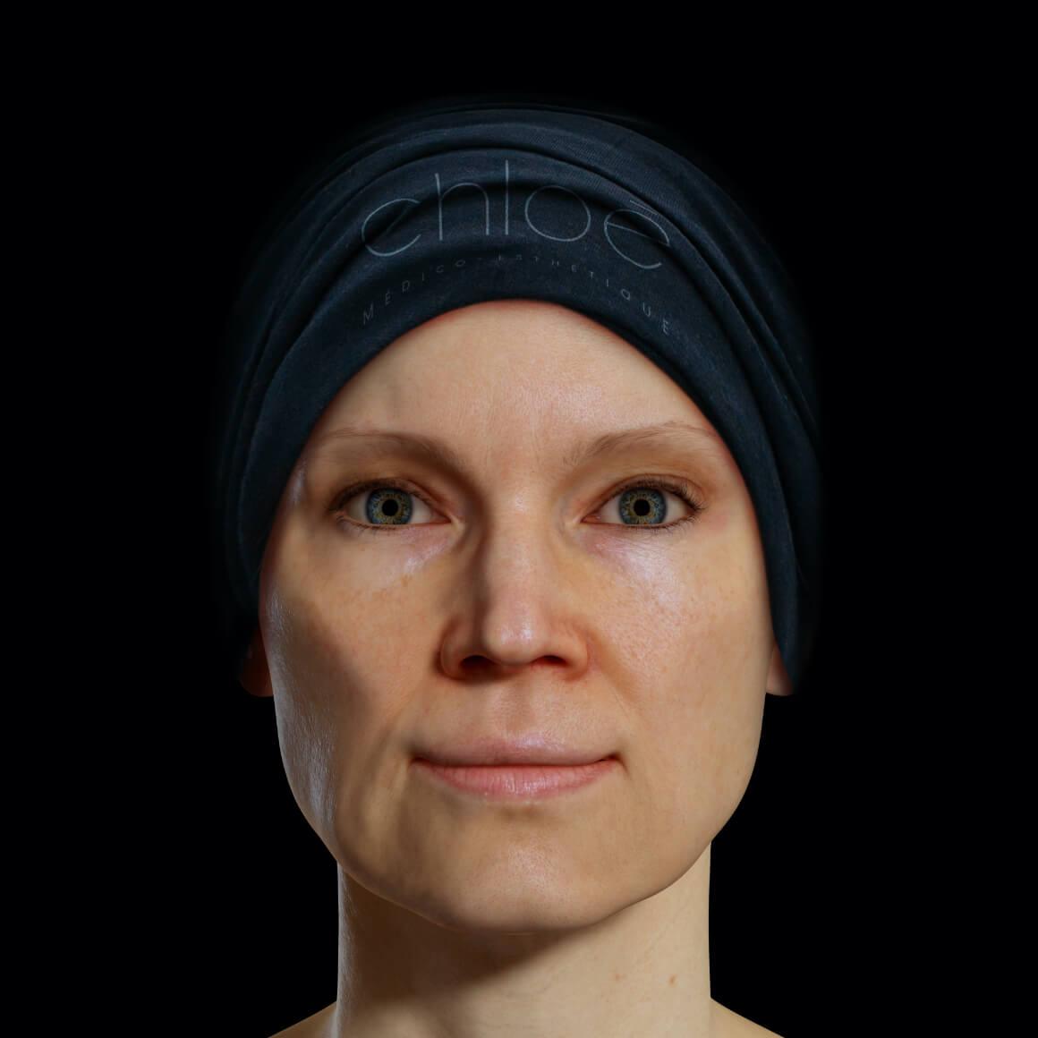 Une patiente de la Clinique Chloé positionnée de face après des traitements au laser Fotona 4D pour effacer les rides