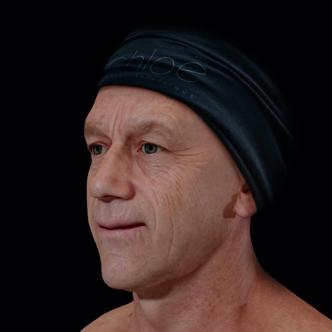 Patient de la Clinique Chloé positionné en angle aux prises avec des rides et ridules au niveau du visage