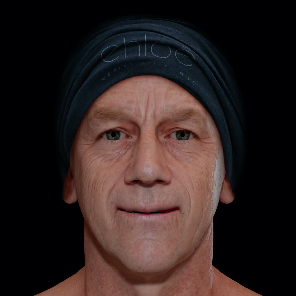 Patient de la Clinique Chloé positionné de face aux prises avec des rides et ridules au niveau du visage