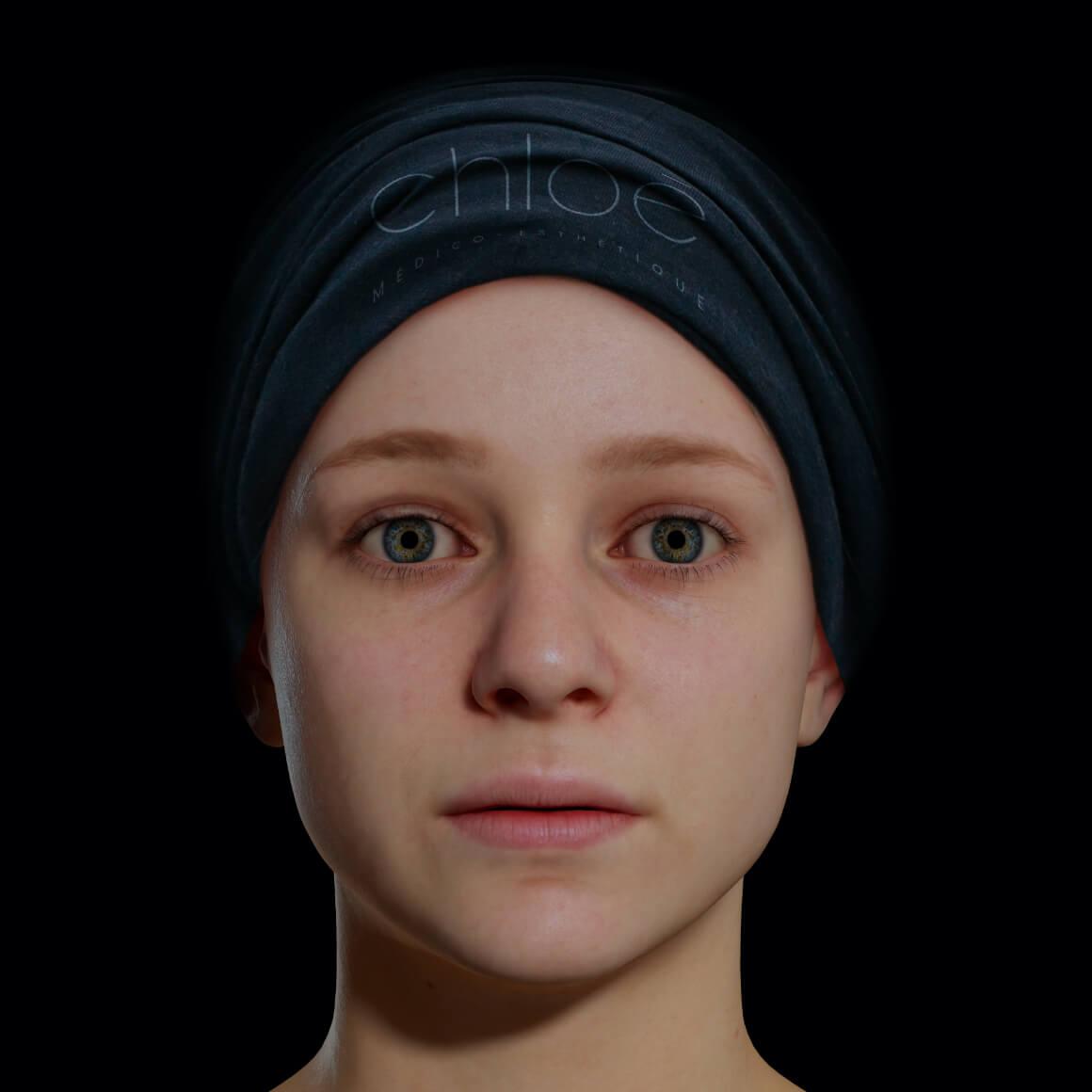 Jeune patiente de la Clinique Chloé positionnée de face après des traitements de microneedling pour effacer les ridules