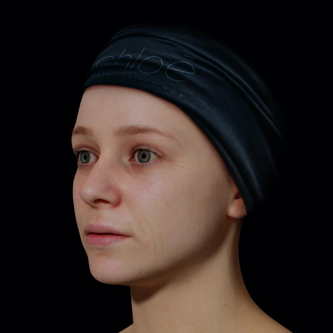 Jeune patiente de la Clinique Chloé positionnée en angle avec de fine ridules sur le visage