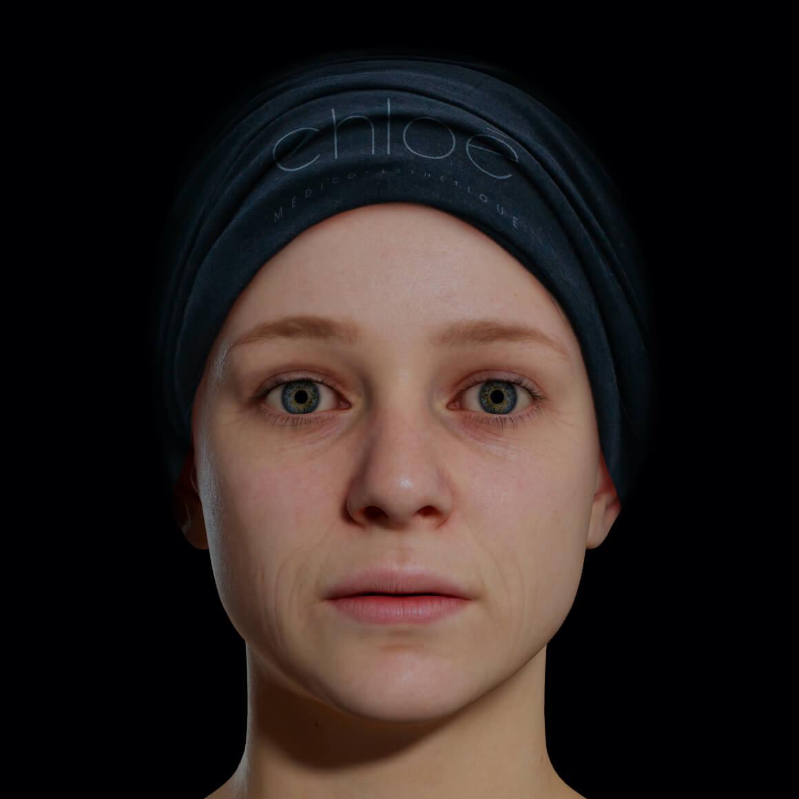 Jeune patiente de la Clinique Chloé positionnée de face avec de fine ridules sur le visage