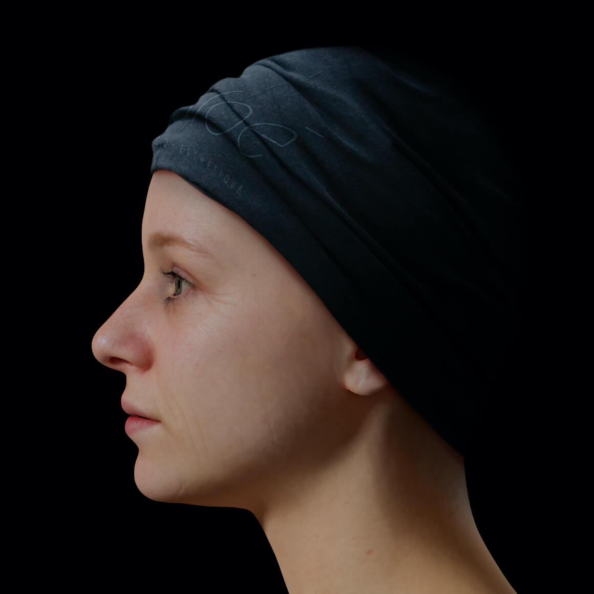 Jeune patiente de la Clinique Chloé positionnée de côté avec de fine ridules sur le visage