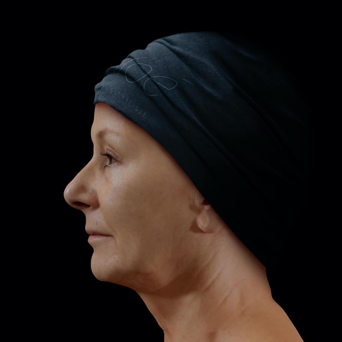 Patiente à la Clinique Chloé vue de côté après des injections de neuromodulateurs pour atténuer, voire effacer les rides