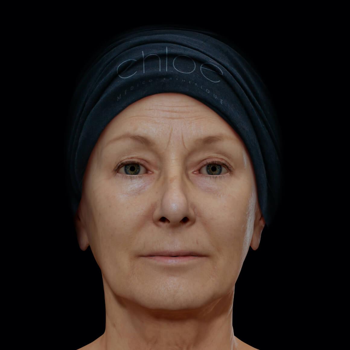 Patiente à la Clinique Chloé vue de face aux prises avec des rides et ridules au niveau du visage