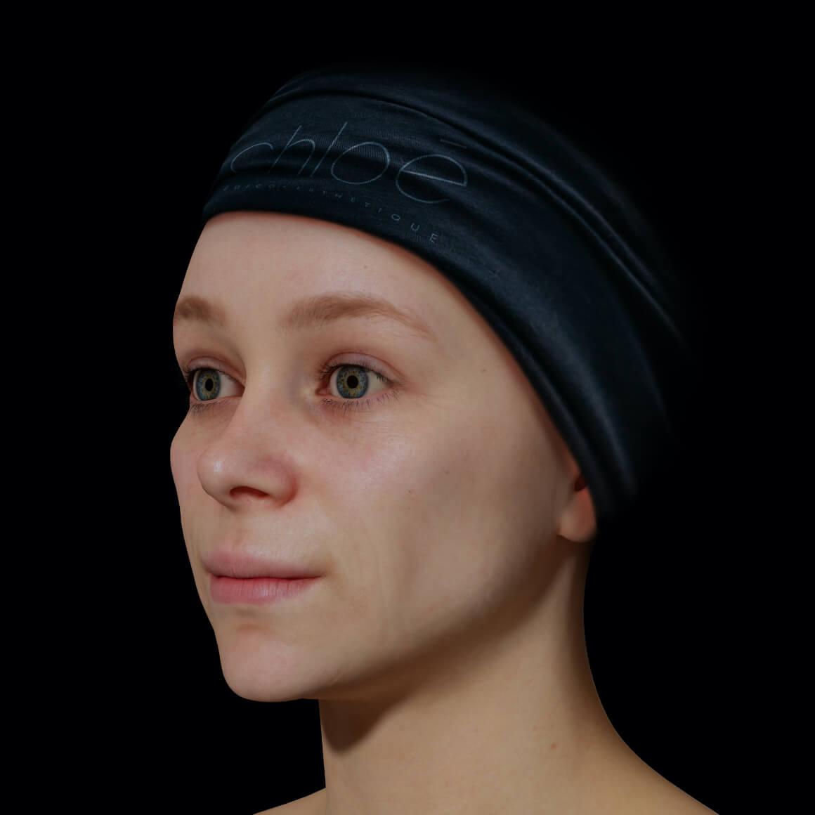 Une patiente de la Clinique Chloé en angle après des traitements de photorajeunissement à la lumière intense pulsée, ou IPL