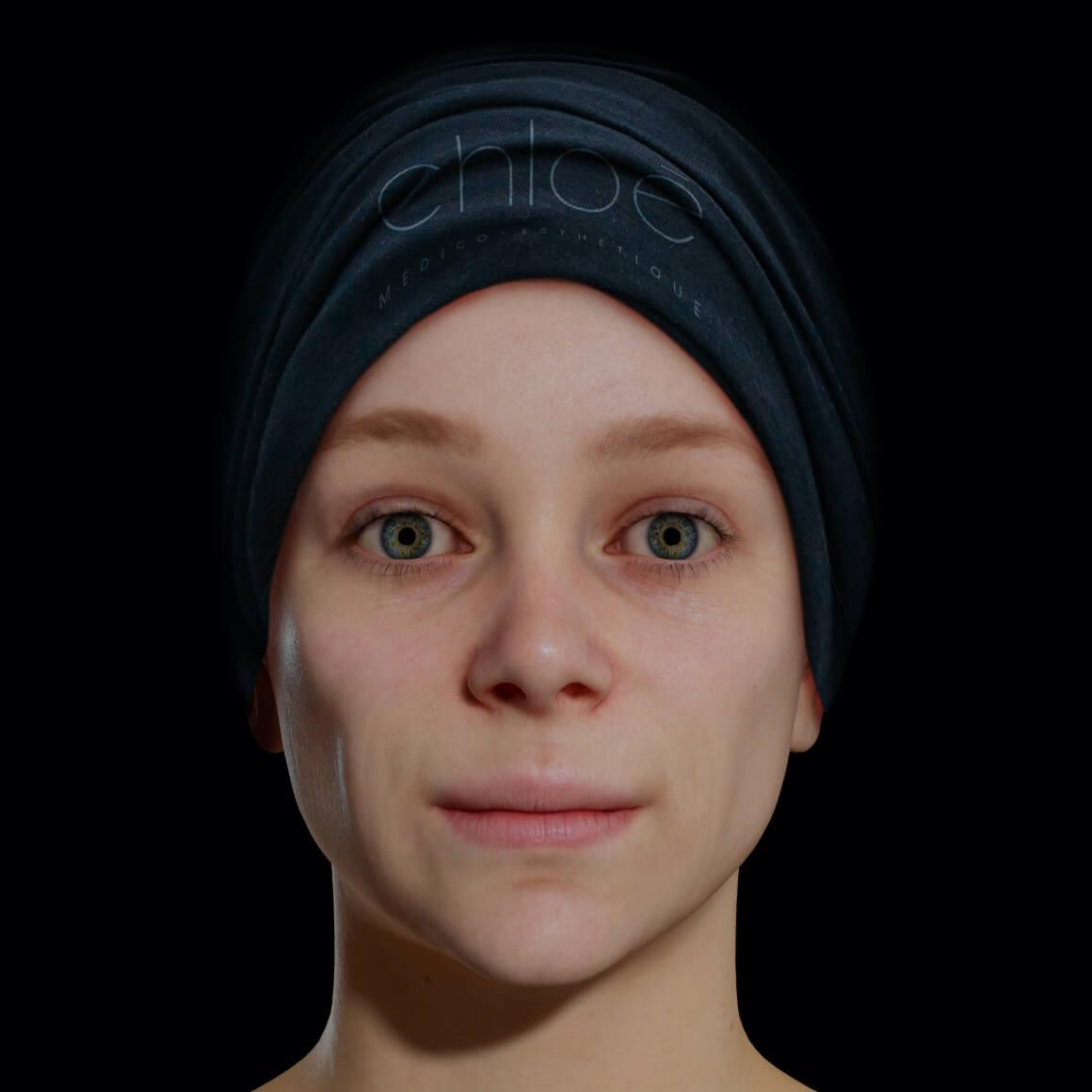 Une patiente de la Clinique Chloé de face après des traitements de photorajeunissement à la lumière intense pulsée, ou IPL