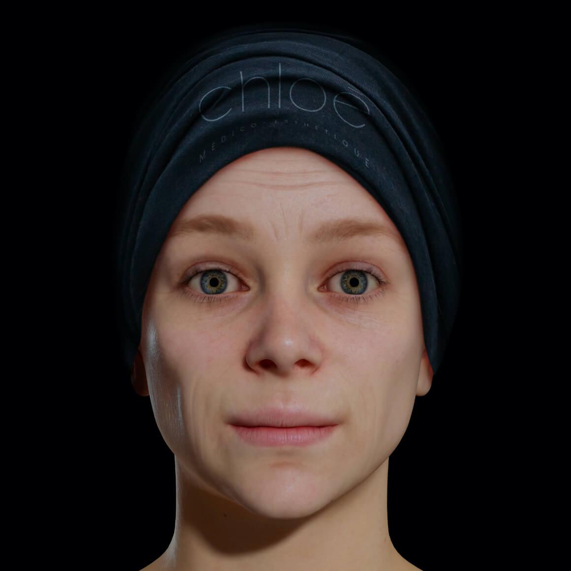 Une patiente de la Clinique Chloé positionné de face démontrant rides et ridules au niveau du visage