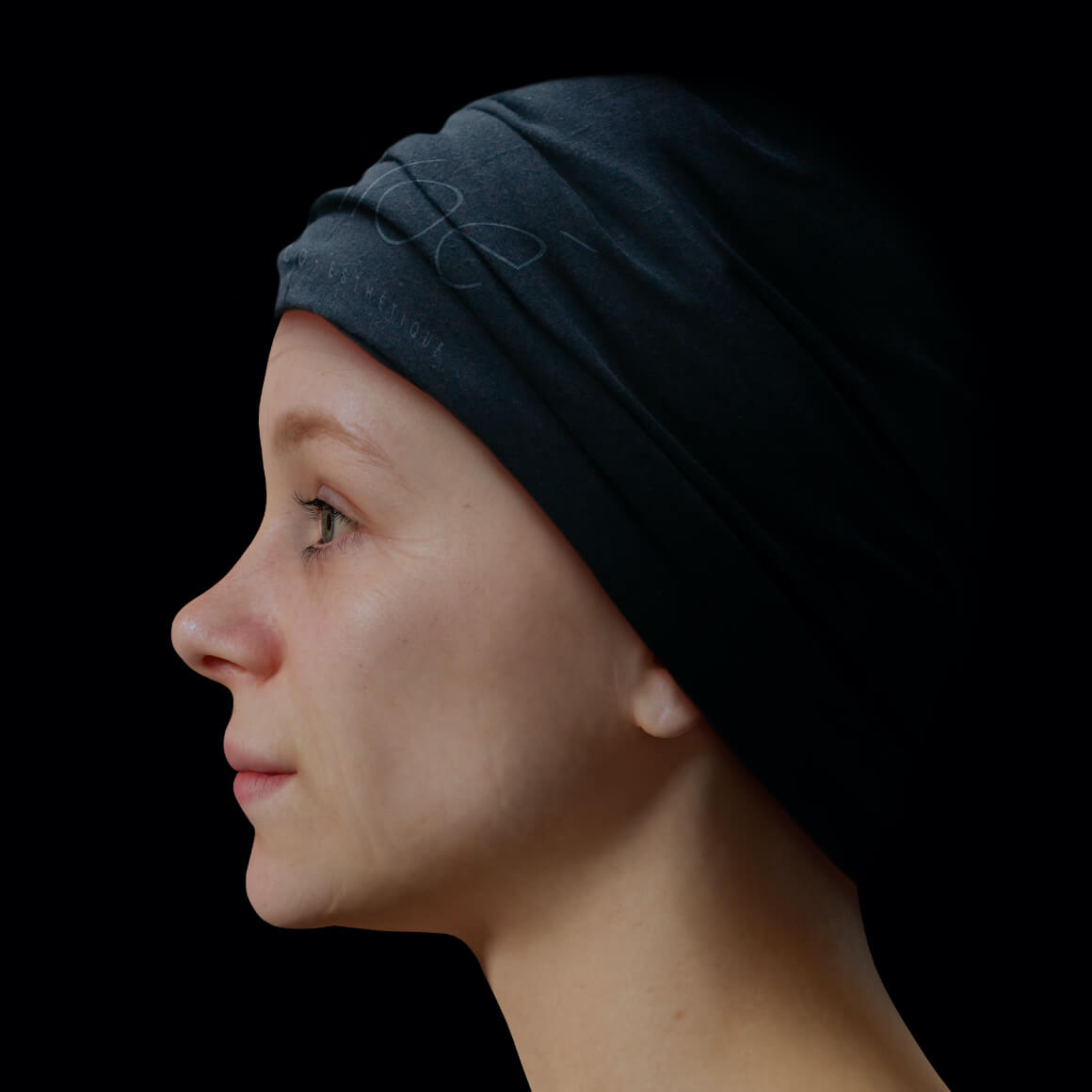 Une patiente de la Clinique Chloé positionné de côté démontrant rides et ridules au niveau du visage