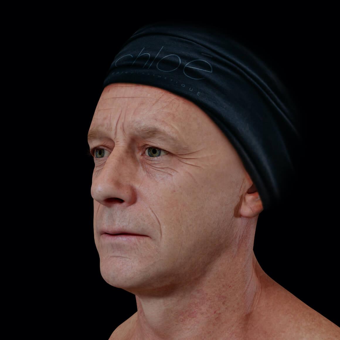 Patient de la Clinique Chloé positionné en angle ayant rides et ridules au niveau du visage et une glabelle prononcée