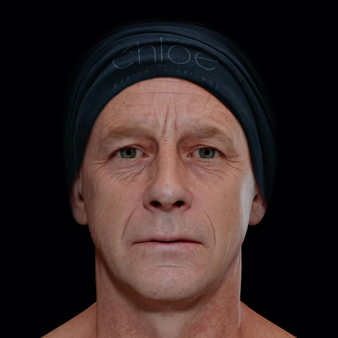 Patient de la Clinique Chloé positionné de face ayant rides et ridules au niveau du visage et une glabelle prononcée