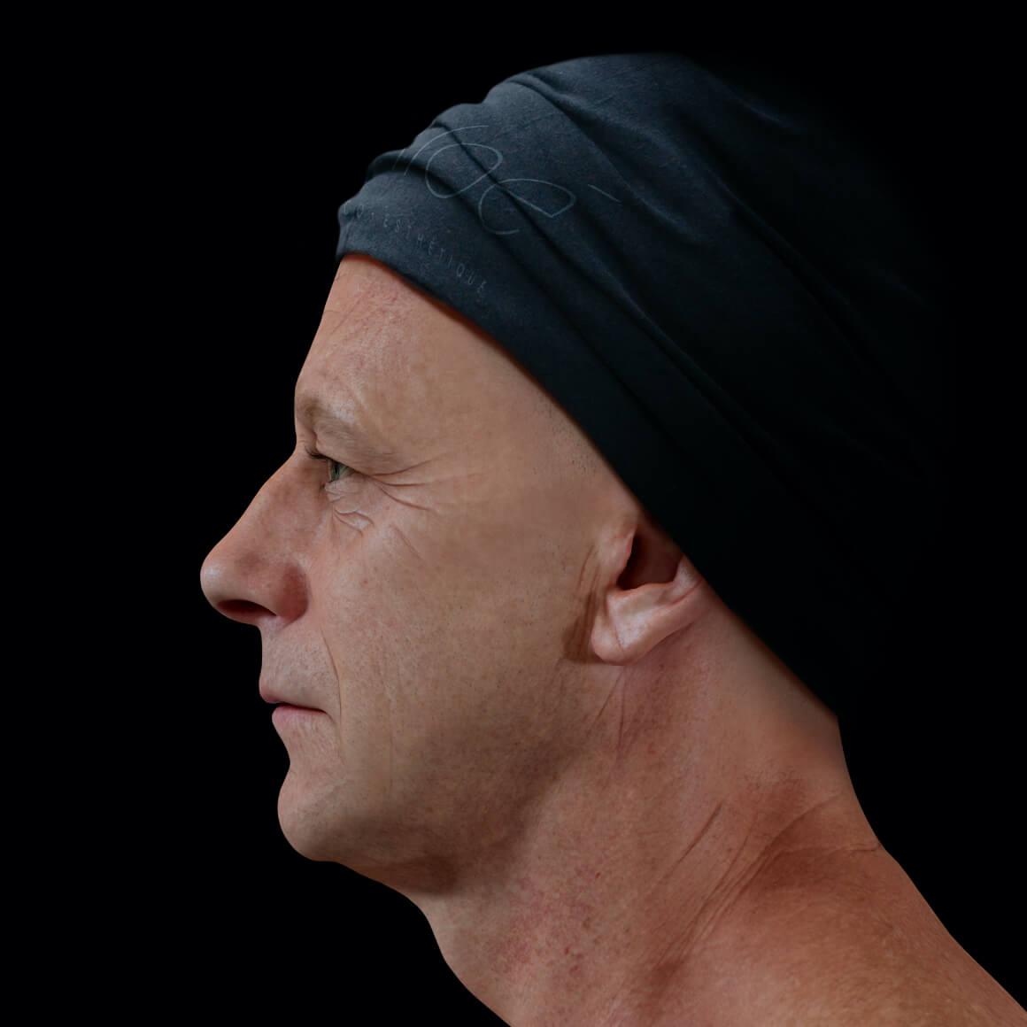 Patient de la Clinique Chloé positionné de côté ayant rides et ridules au niveau du visage et une glabelle prononcée