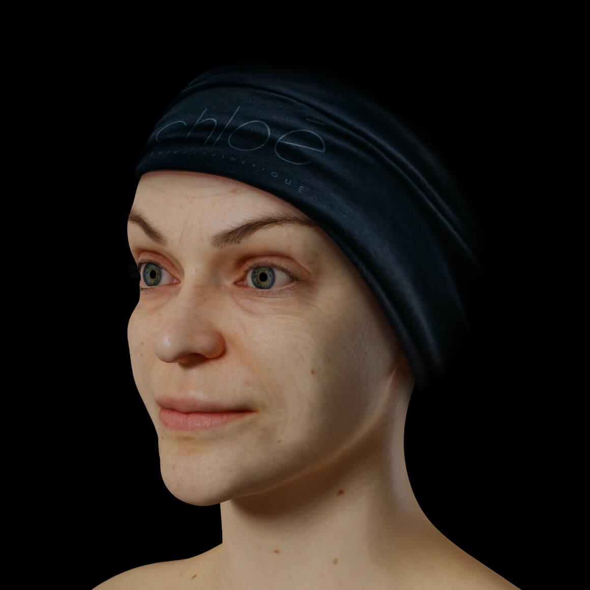 Une patiente de la Clinique Chloé positionnée en angle ayant quelques rides et ridules au niveau du visage