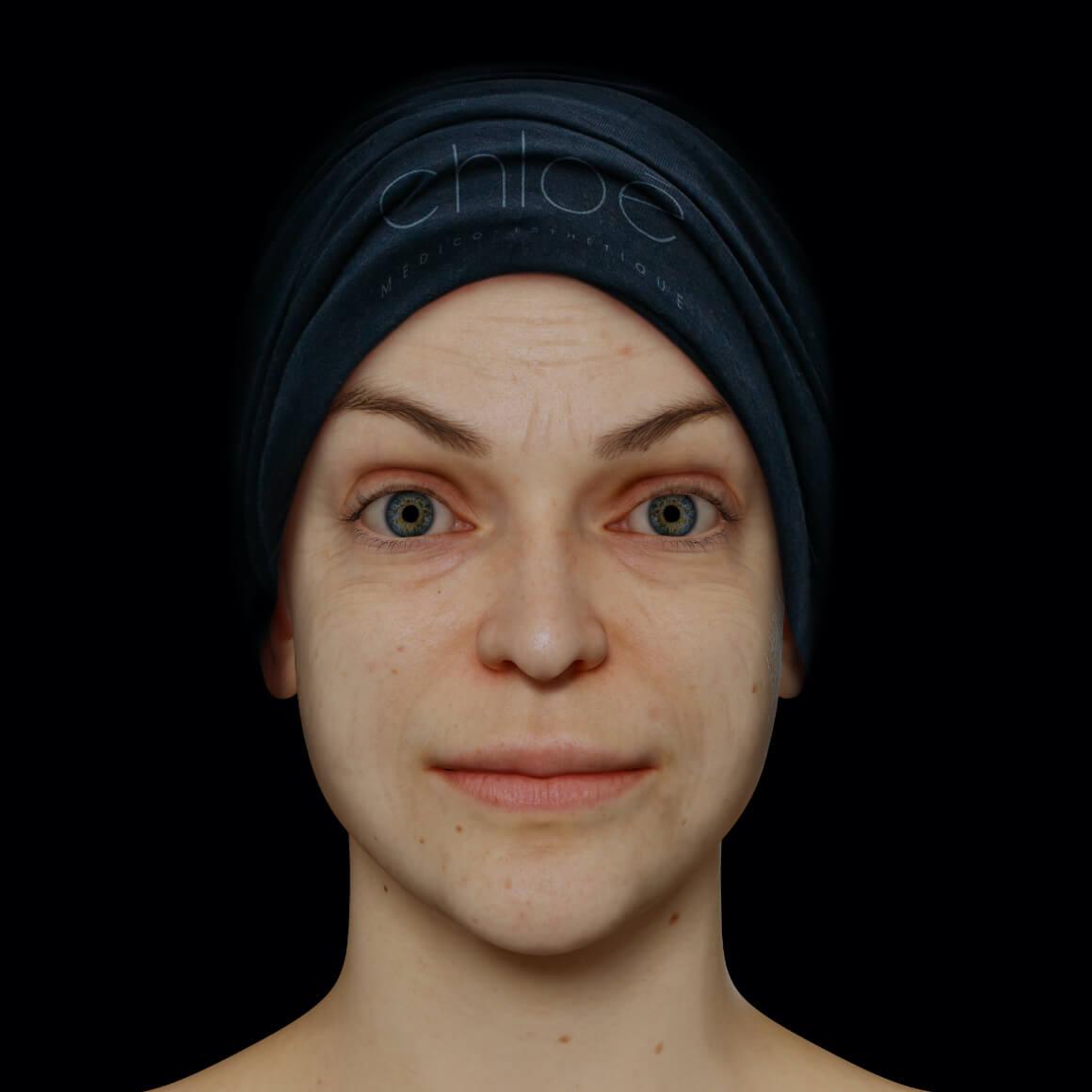 Une patiente de la Clinique Chloé positionnée de face ayant quelques rides et ridules au niveau du visage
