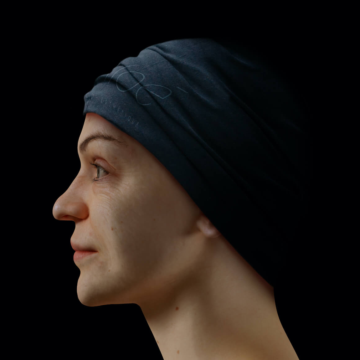 Une patiente de la Clinique Chloé positionnée de côté ayant quelques rides et ridules au niveau du visage