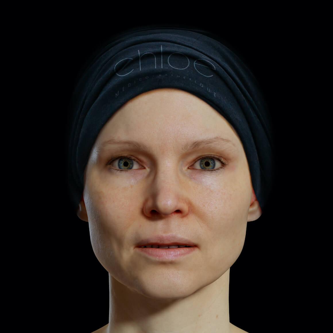 Patiente de la Clinique Chloé de face après des traitements de radiofréquence Venus Legacy pour estomper les rides