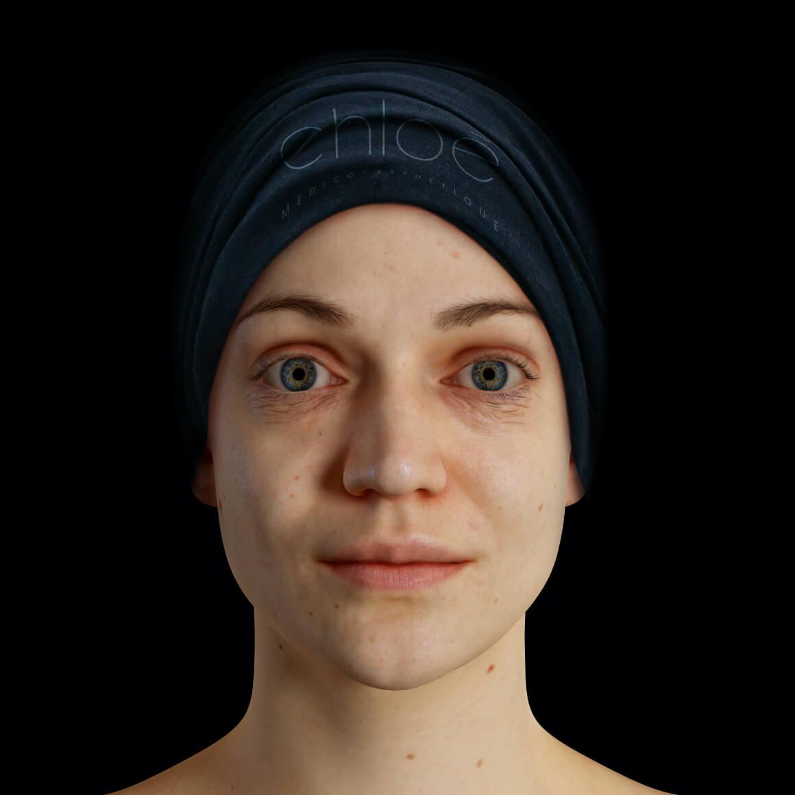 Patiente de la Clinique Chloé positionnée de face montrant quelques rides et ridules sur le visage