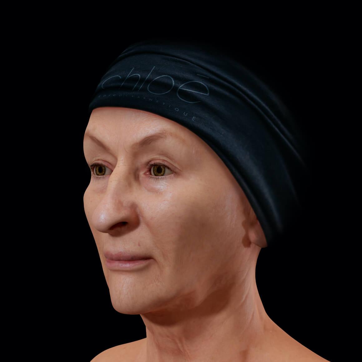 Patiente de la Clinique Chloé positionnée en angle après un traitement de photorajeunissement IPL contre la rosacée