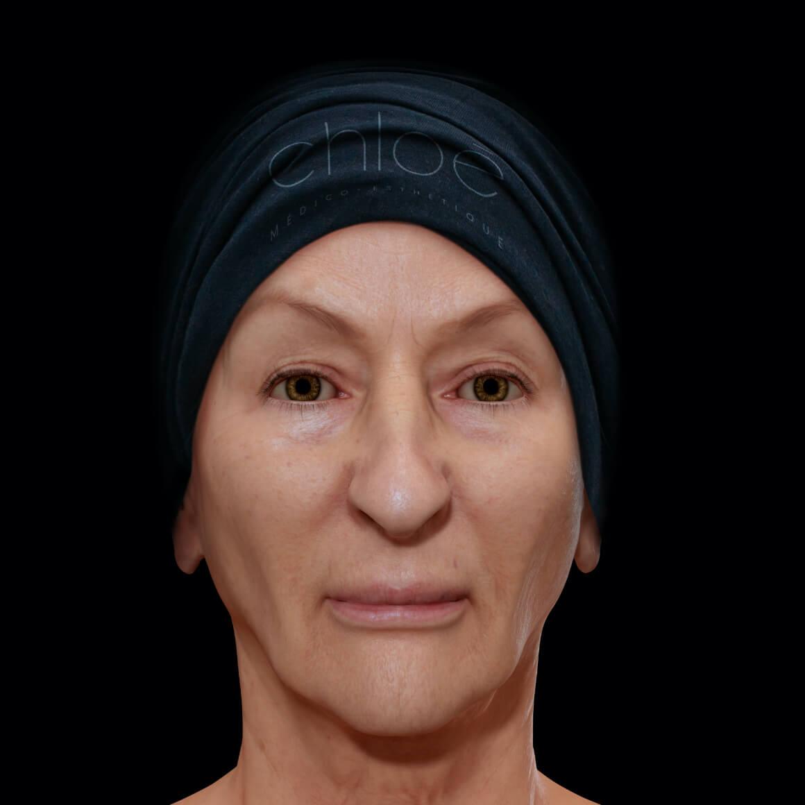 Patiente de la Clinique Chloé positionnée de face après un traitement de photorajeunissement IPL contre la rosacée