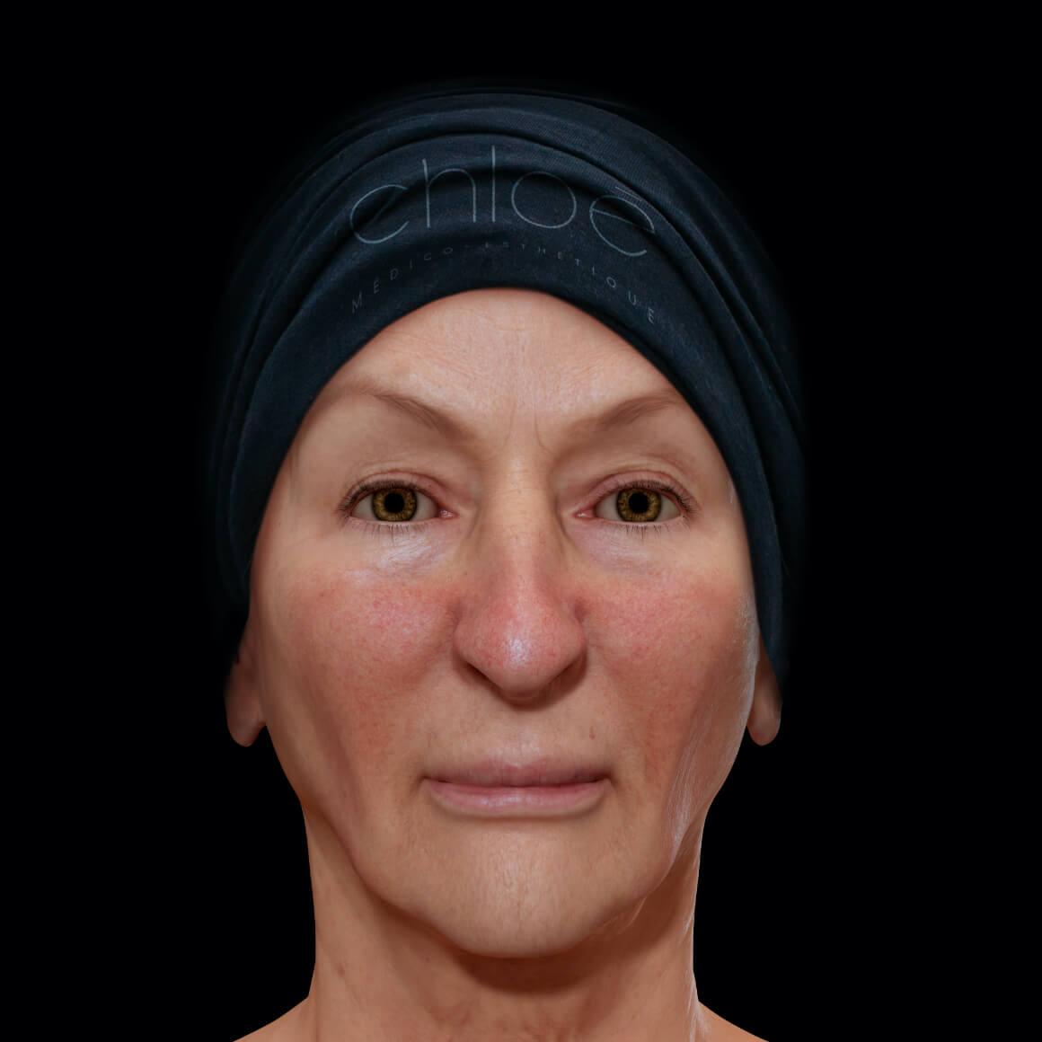 Patiente de la Clinique Chloé positionnée de face ayant de la rosacée sur les joues et le nez