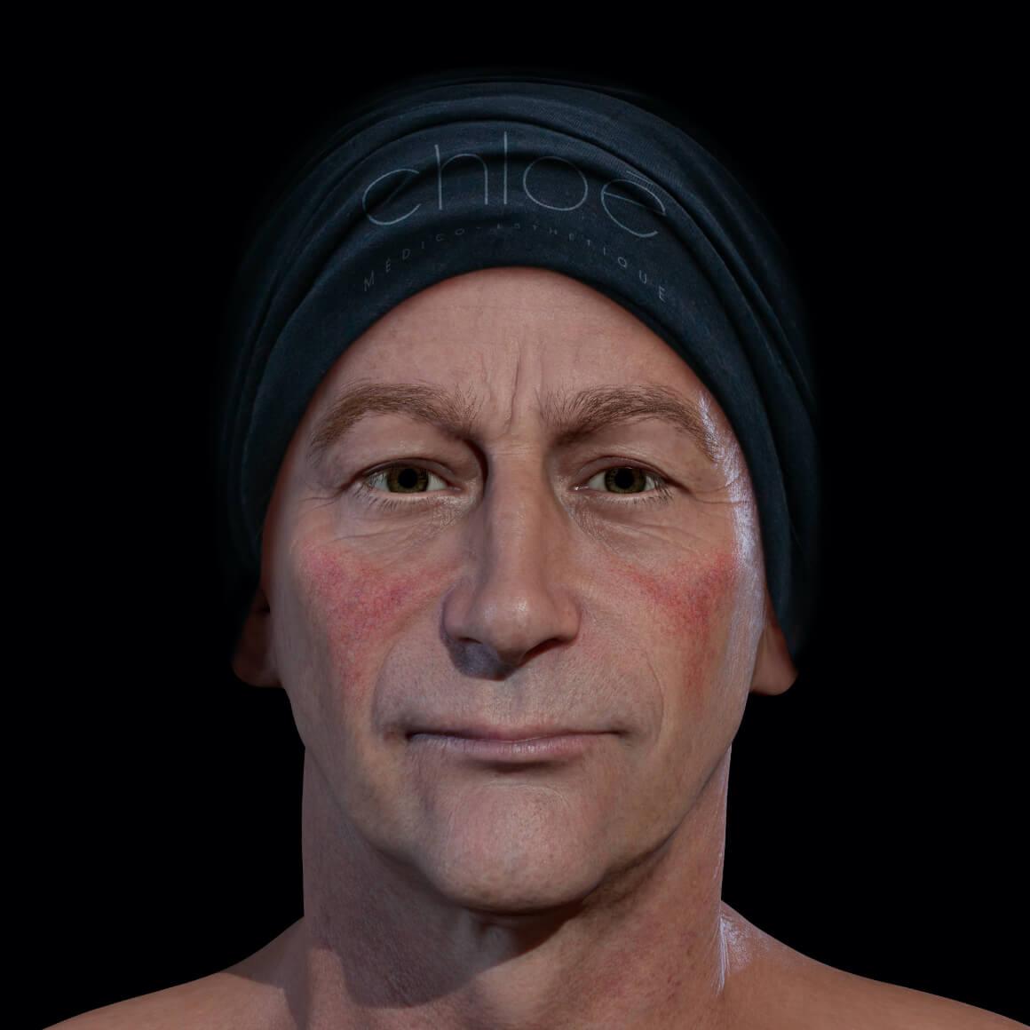 Patient de la Clinique Chloé positionné de face ayant de la rosacée sur les joues
