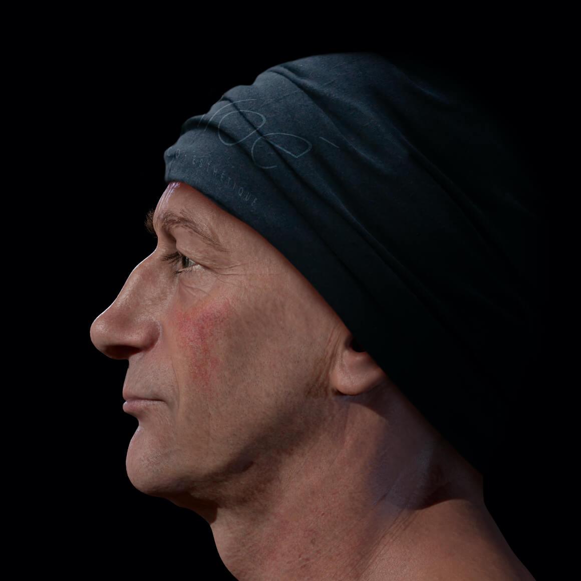 Patient de la Clinique Chloé positionné de côté ayant de la rosacée sur les joues