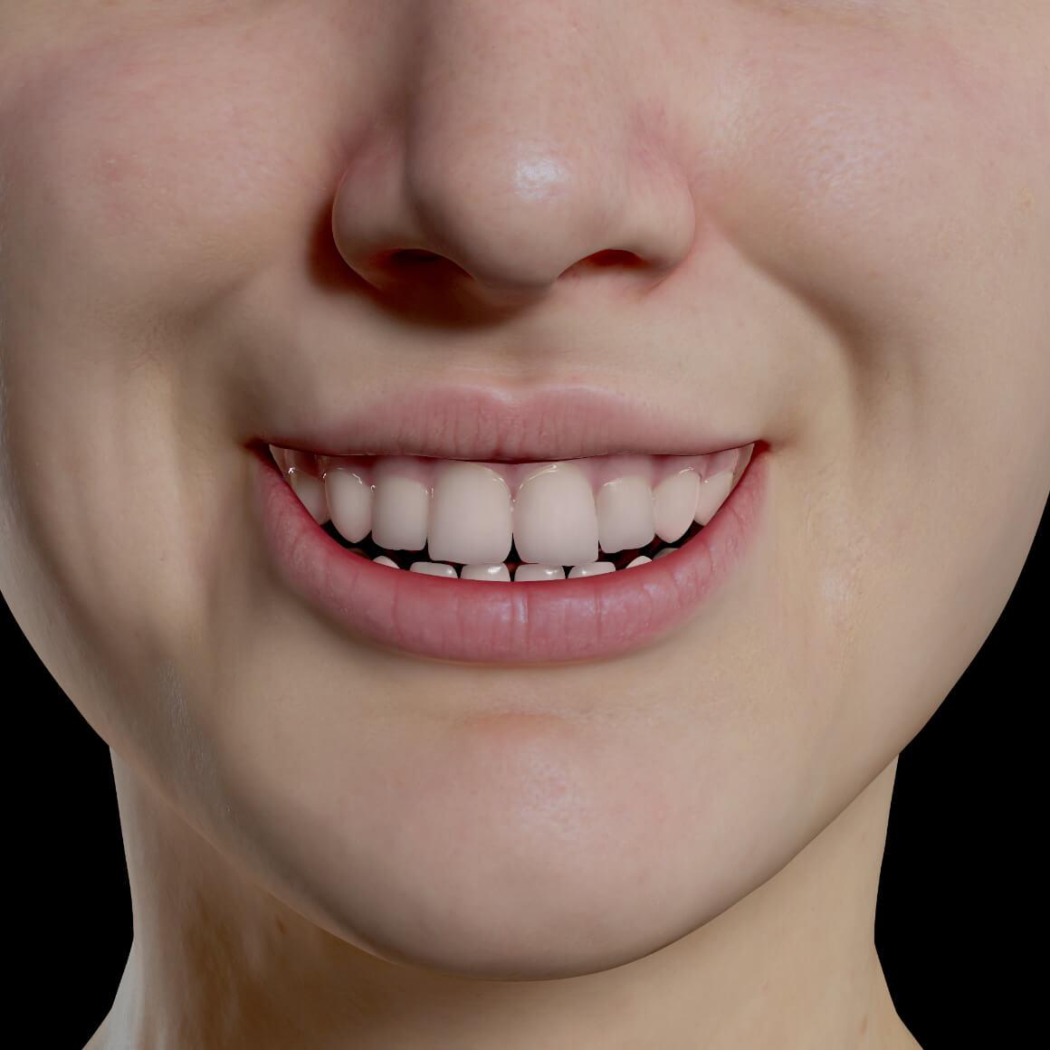 Sourire d'une patiente de la Clinique Chloé après des injections de neuromodulateurs pour traiter le sourire gingival