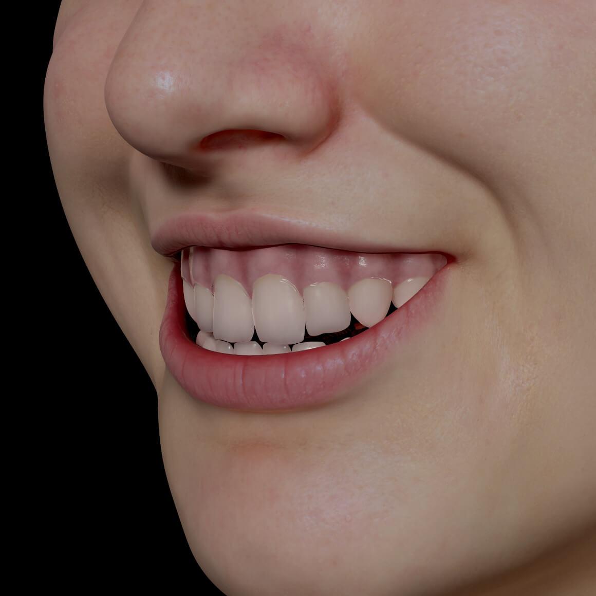 Sourire gingival d'une patiente de la Clinique Chloé positionnée en angle