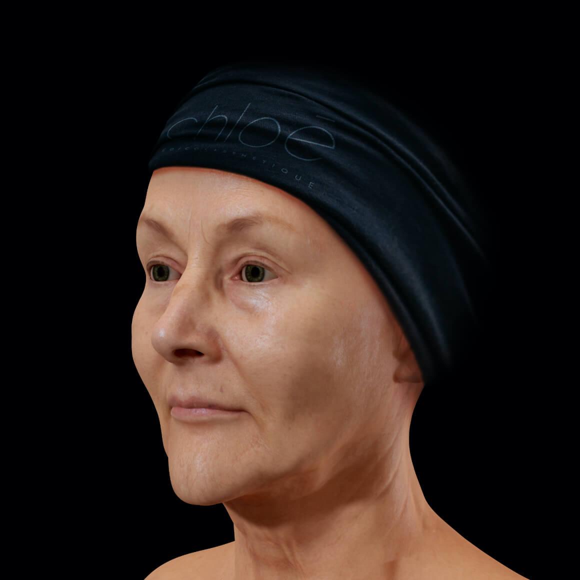 Patiente de la Clinique Chloé en angle après des traitements de photorajeunissement IPL contre les taches pigmentaires
